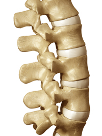 Laser Spine Surgery Injury Claims