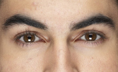 Pennsylvania lens solution lawyers - Philadelphia, Pennsylvania, New Jersey, Delaware - Eye infection lawyers