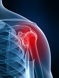 Shoulder surgery pain pum attorneys - Philadelphia, Pennsylvania, New Jersey and Delaware